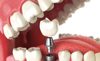 Single tooth replacement dental implant