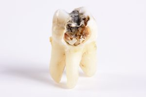 When's the last time you had an appointment with your dentist in San Antonio?
