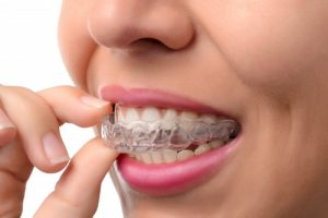 woman smiling inserting Invisalign aligner