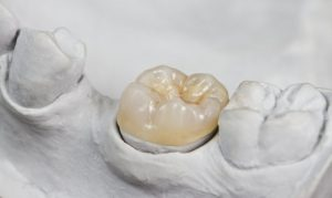 porcelain crown restoration set in bridge