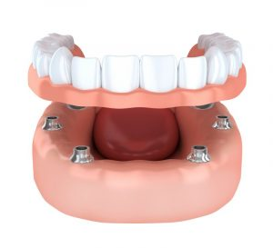 implant-retained dentures in San Antonio