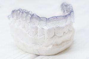 Dental model showing Invisalign in San Antonio.